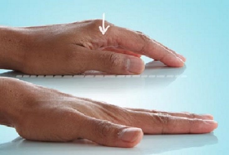 אימונים לחיזוק כפות הידיים: תרגיל מתיחת אצבעות בסיסית
