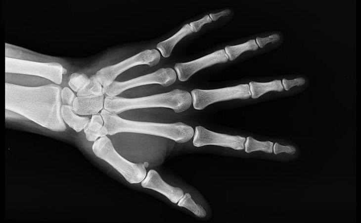 יתרונות בריאותיים של סומאק: צילום רנטגן של יד