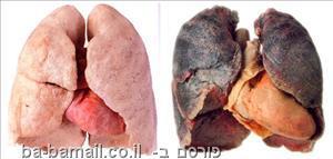 ריאות בריאות וריאות של מעשן
