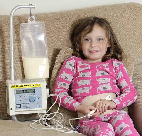 הילדה שעבורה אכילה היא סכנת חיים - סיפור מדהים!
