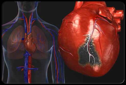 מחלות לב