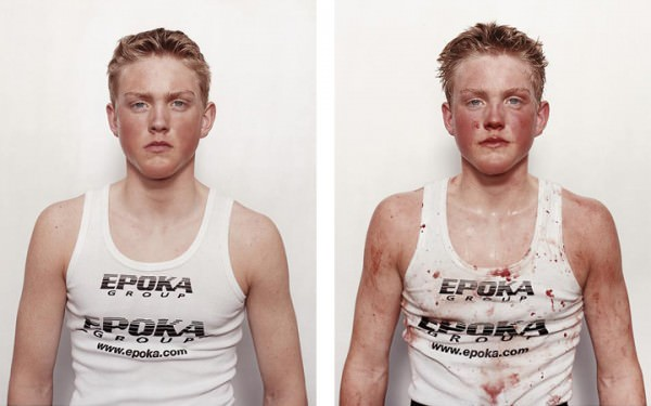 איך נראים מתאגרפים לפני ואחרי הקרב?