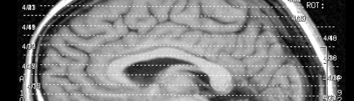 צילום של מוח