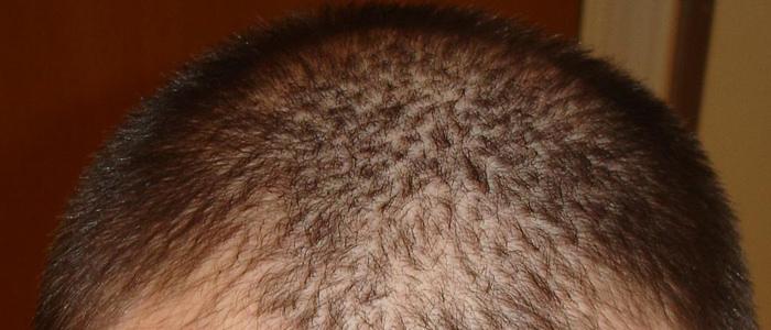 סימני בריאות בשיער