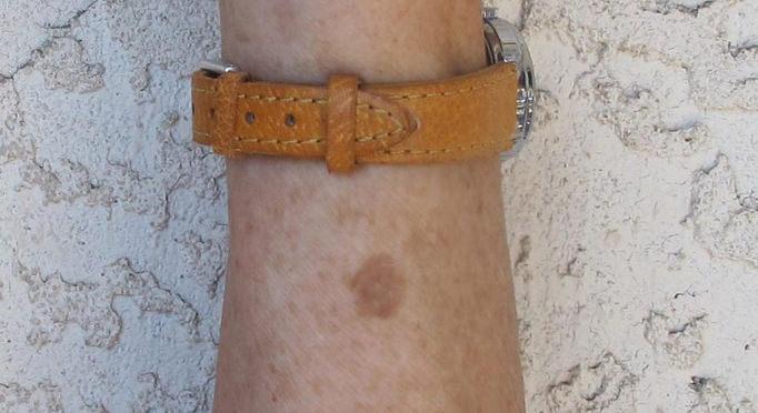סימנים על העור