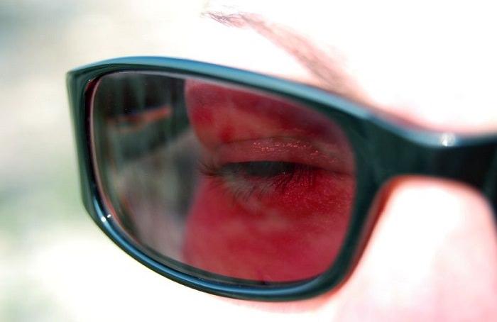 קניית משקפי שמש