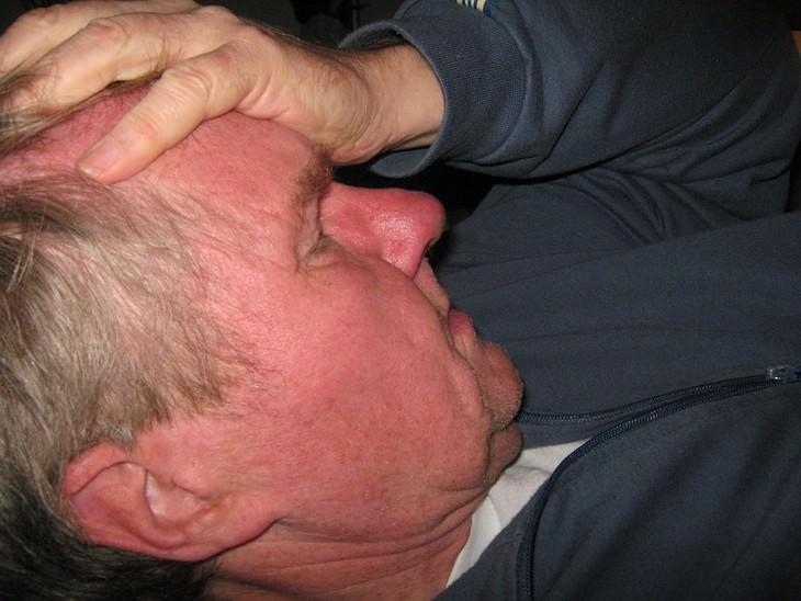 אבחון וטיפול במפרצת במוח