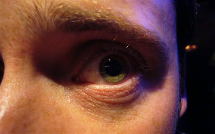 שימושים לשמן קוקוס: עין ירוקה