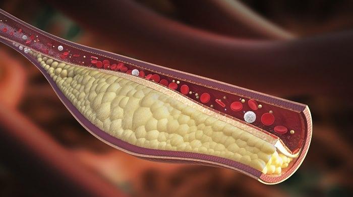 הדמיה ממוחשבת של כלי דם