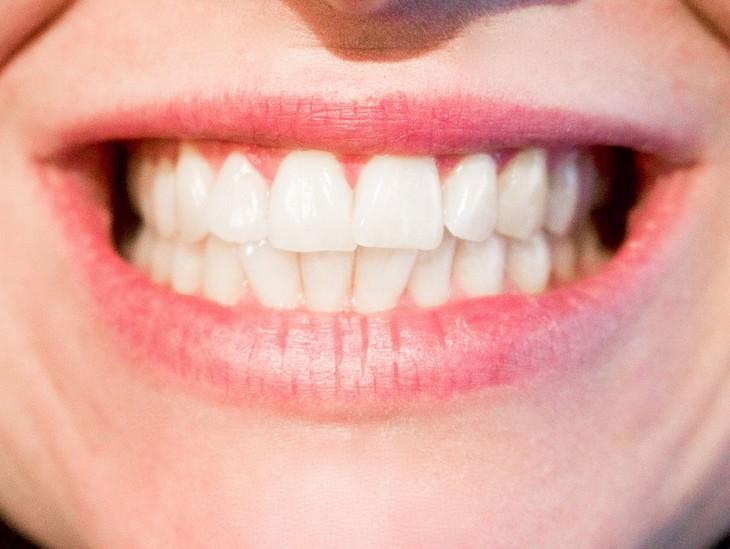 פה של אישה שחושפת שיניים