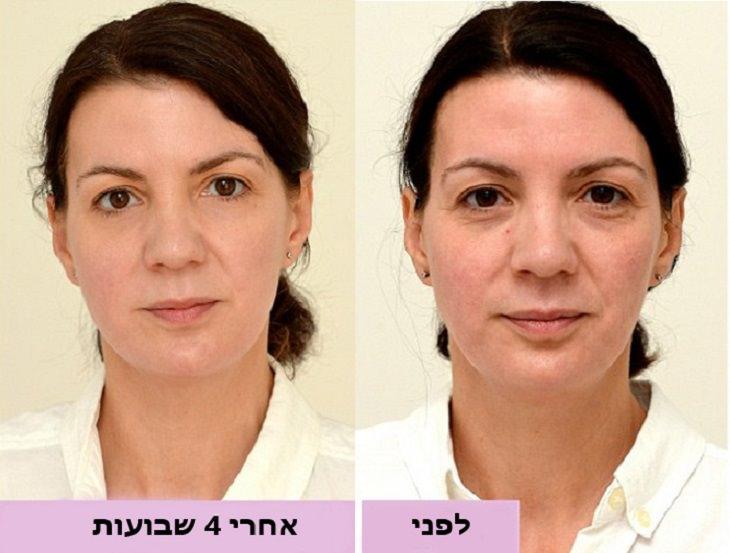 היתרונות הבריאותיים של שתיית מים: צילום פנים של אישה לפני ואחרי