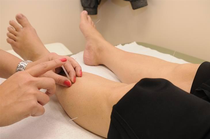 רגליים של אישה שמקבלת טיפול בדיקור