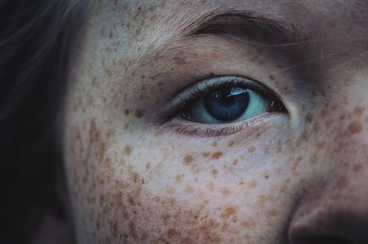 חצי פנים של אישה עם נמשים עליהם