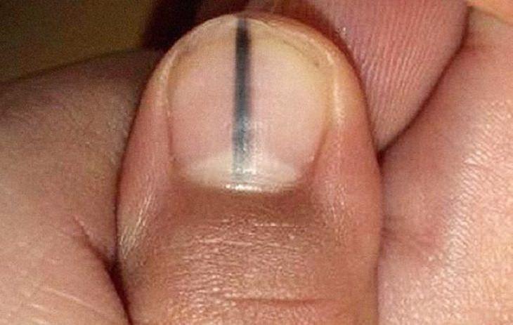 מלנומה של הציפורן: ציפורן שעליה הופיע פס שחור דק, סימן ברור של מלנומה של הציפורן