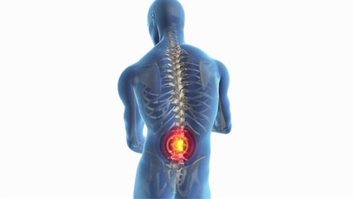 כל מה שצריך לדעת על פריצת דיסק: איור תלת מימד של אדם, כשרואים את עמוד השדרה שלו והחלק התחתון מסומן בעיגול