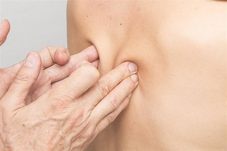 כל מה שצריך לדעת על פריצת דיסק: פיזיותרפיסט מפעיל לחץ על גב של מטופל