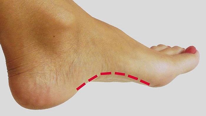 תרגילים למניעת פלטפוס: כף רגל עם קשת בריאה