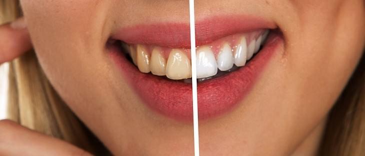 השפעות שליליות של קולה על הגוף: תמונה של שיניים צהובות לצד שיניים לבנות