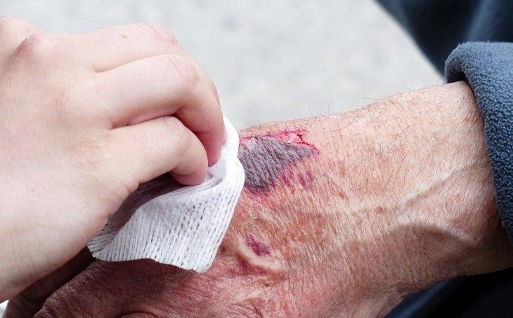 יתרונות בריאותיים של בצל ירוק: ניקוי וספיגת דם הניגר מפצע