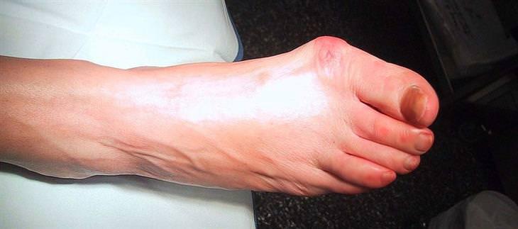 כאבים בזמן הליכה: בוניון
