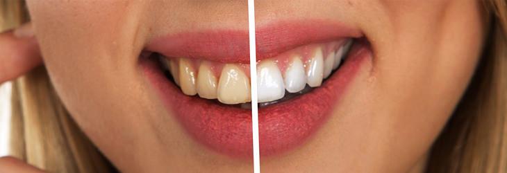 דברים יומיומיים ממכרים: לפני ואחרי של הלבנת שיניים