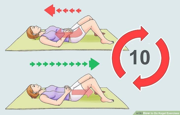 חיזוק שרירי רצפת האגן: ביצוע תרגילי קיגל