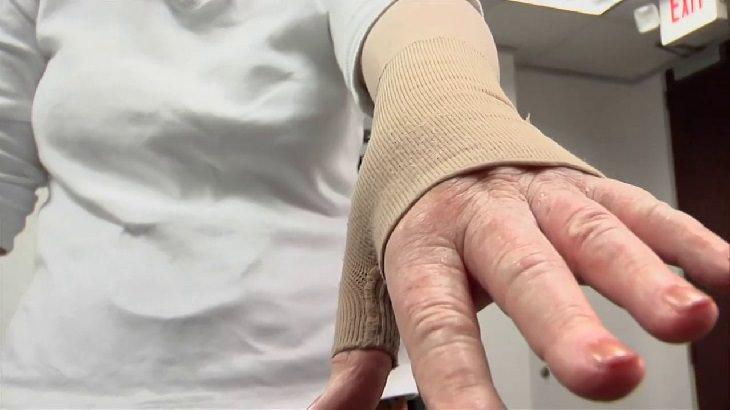 שימושים ויתרונות של קרם טרטר: יד חבושה של אישה