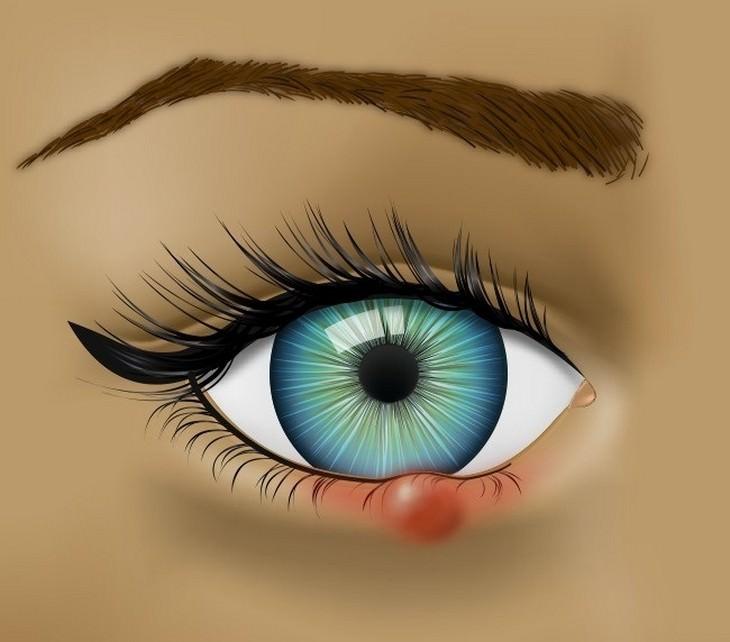 איור של עין עם שעורה