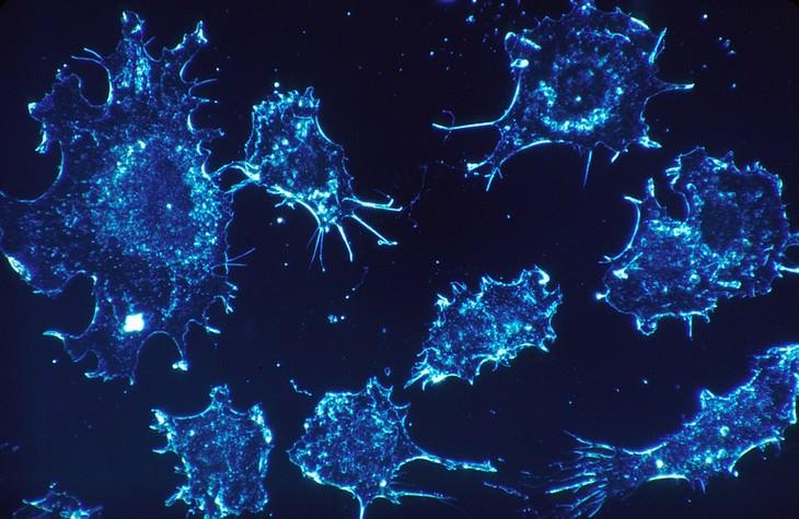 יתרונות בריאותיים של גרגר הנחלים: צילום מיקרוסקופי של תאי סרטן