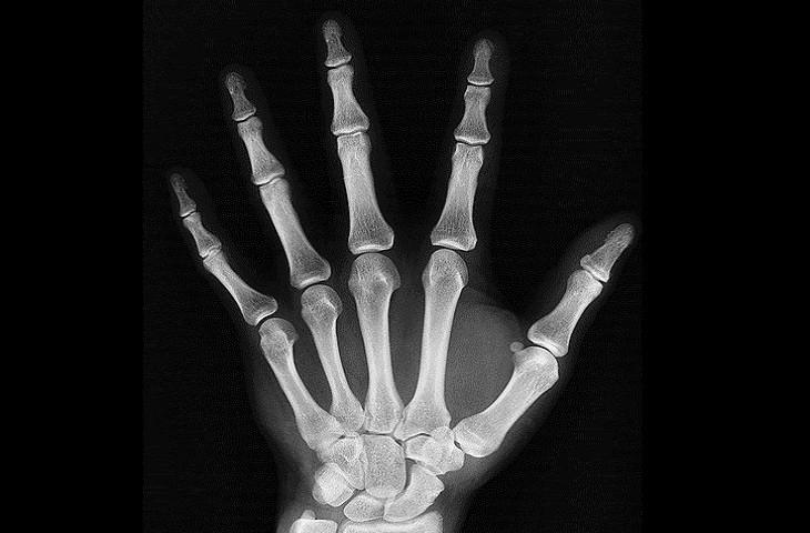 צילום רנטגן של כף יד