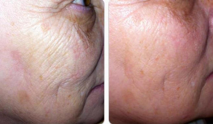 תמונה של לפני ואחרי טיפול להעלמת קמטים