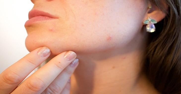 עור של אישה עם פצעונים
