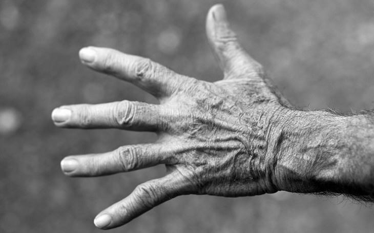 סיבות לעקצוץ ברגליים ובידיים: כף יד