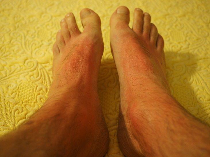 בדיחה: כפות רגליים עם כוויות שמש