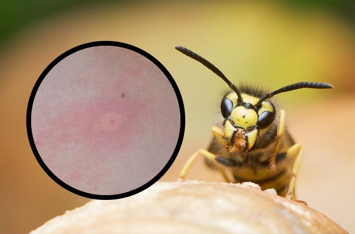 איך לזהות עקיצות של חרקים: צרעה