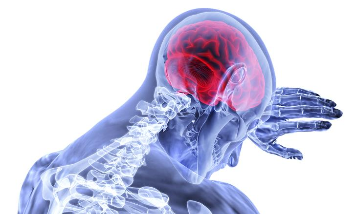 תסמינים לגידול סרטני במוח: איור של צידו הפנימי של גוף האדם, כשהמוח מסומן באדום