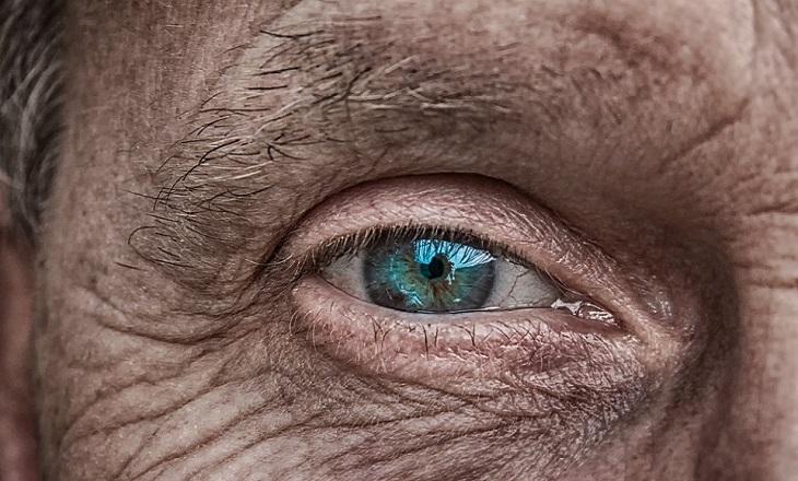 ניוון רשתית: עין של אדם מבוגר