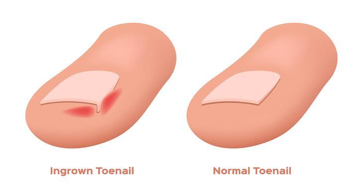 טיפול בציפורניים חודרניות: השוואה של ציפורן רגילה וציפורן חודרנית