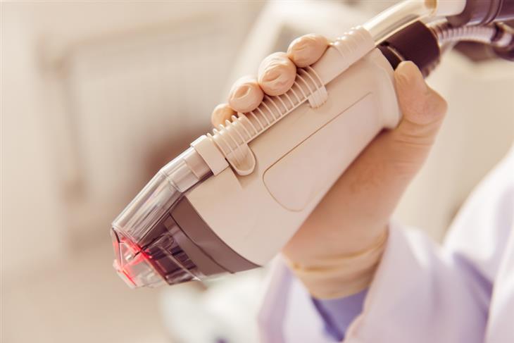 טיפול בציפורניים חודרניות: מכשיר לייזר רפואי