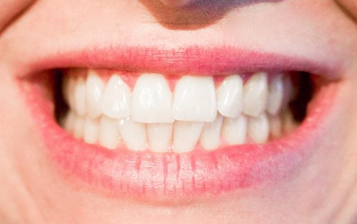 חריקת שיניים: שיניים של אשה