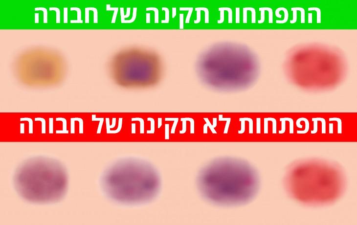 סיבות לשטפי דם תת עוריים: שטף דם לא מסוכן לעומת מסוכן