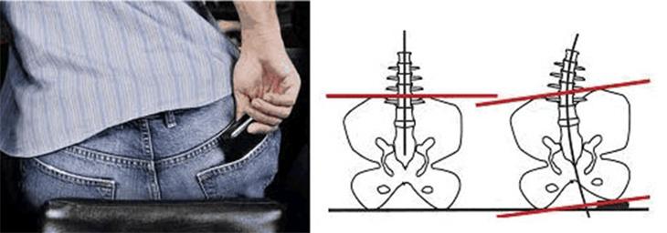 הקשר בין הארנק לכאבי גב: איור שמאר את הפגיעה בגב בעקבות ישיבה על הארנק