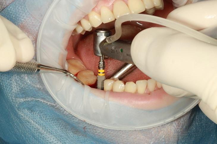 הצמחת שיניים: השתלת שיניים