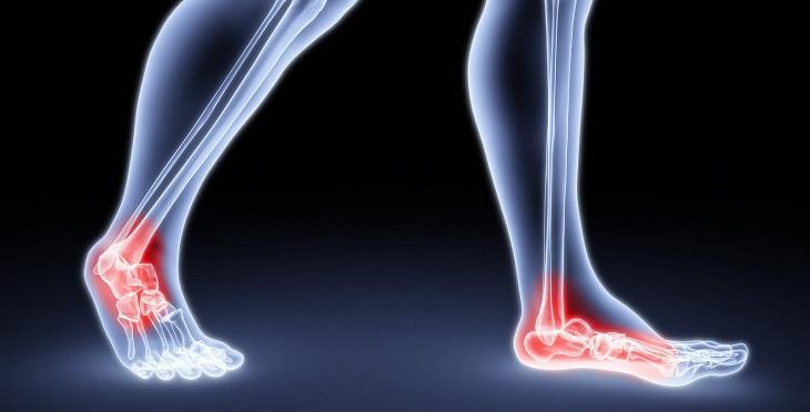 דרכים טבעיות להתמודד עם נקע בקרסול: איור של כאבים בקרסוליים