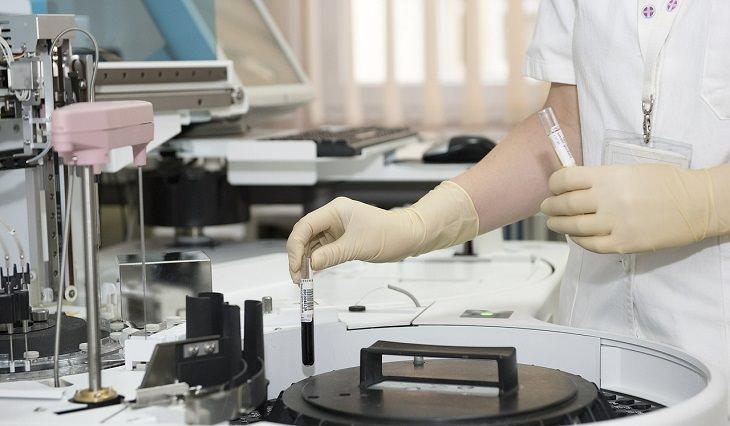 מבחנת דם במעבדה