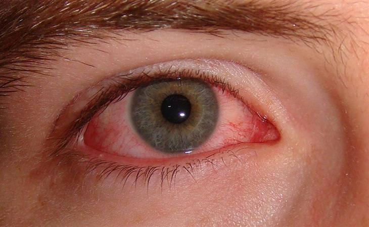 עין שסובלת מדלקת בלחמית