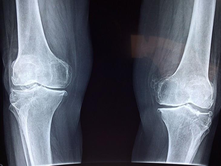 השפעות שליליות של קולה על הגוף: צילום רנטגן של עצמות