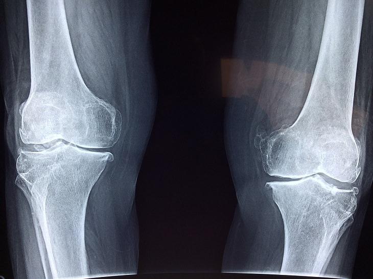 מחלות מתחפשות: צילום רנטגן של עצמות מפרקים