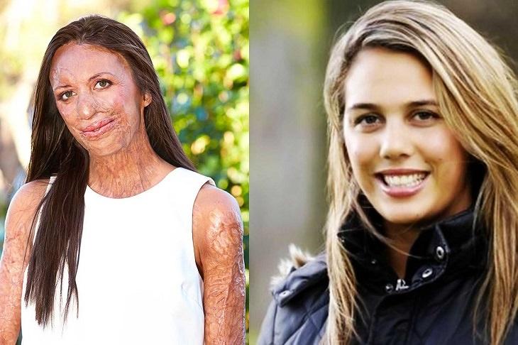 אנשים בעלי מוגבלות שהגיעו להישגים מדהימים: טוריה פיט לפני ואחרי השריפה