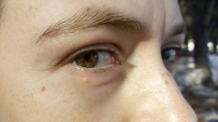 עיניים של גבר מביטות למצלמה